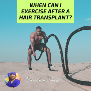 how long after a hair transplant can you exercise