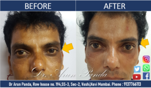 AESTHETIC TREATMENT PATIENT TESTIMONIAL SAYS DR PANDA IS THE BEST SKIN SPECIALIST IN NAVI MUMBAI