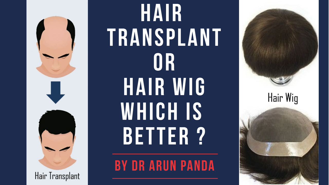 HAIR TRANSPLANT OR WIG WHICH IS BETTER FOR YOU
